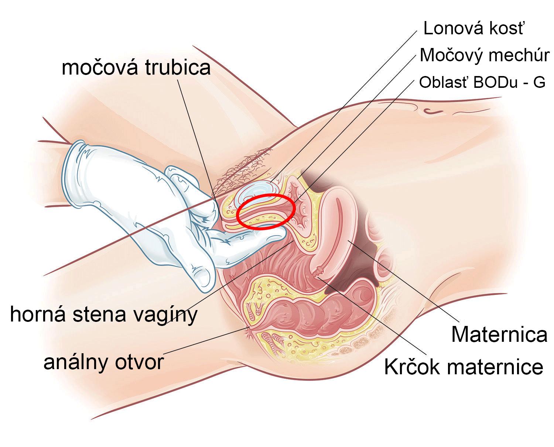 Ako lokalizovať BOD G